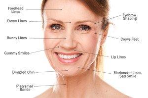 Miami Botox Doctor