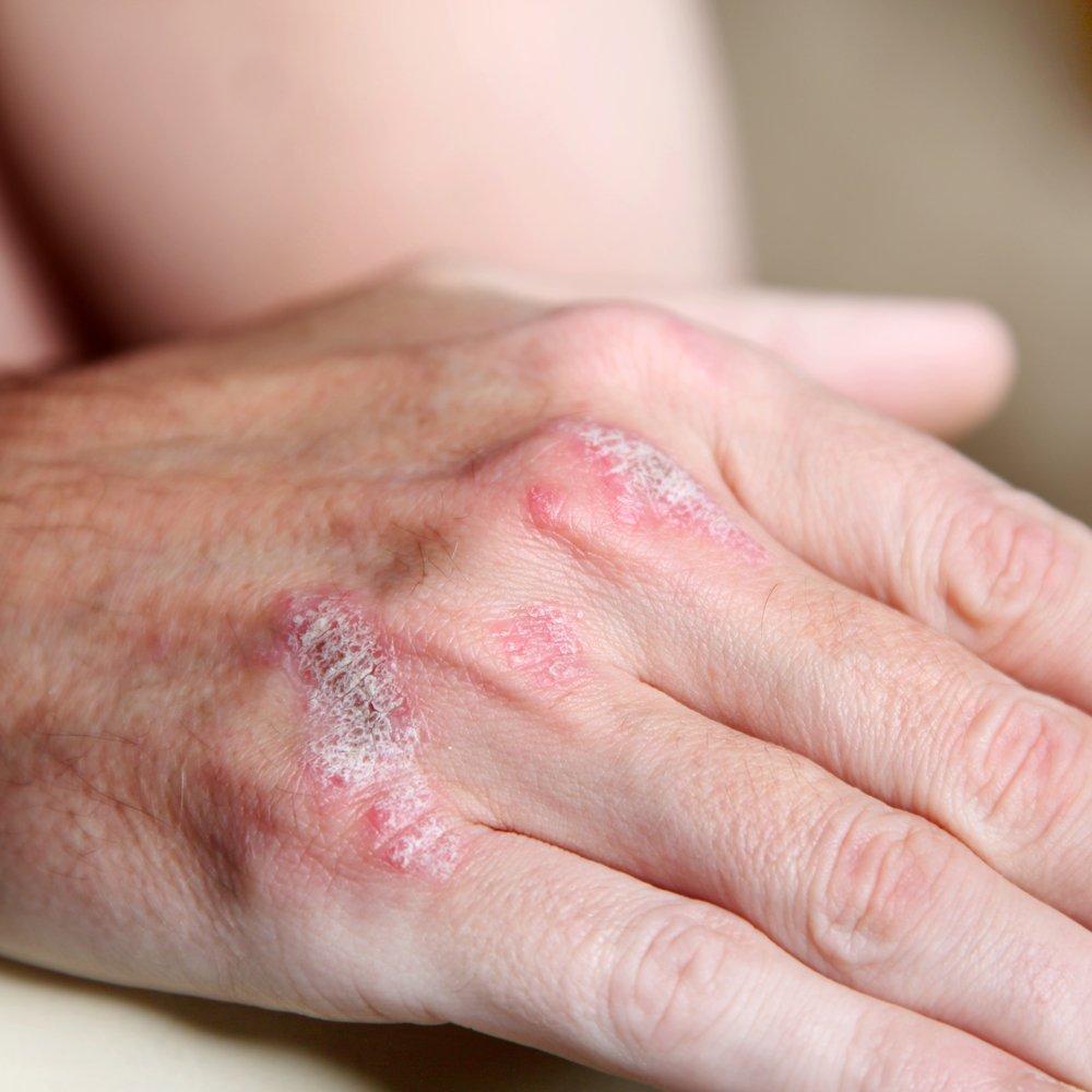 Miami Psoriatic Arthritis Treatment